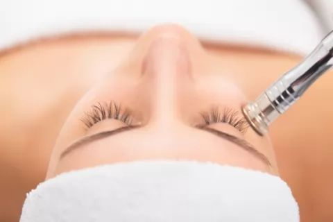 One Session of Microdermabrasion